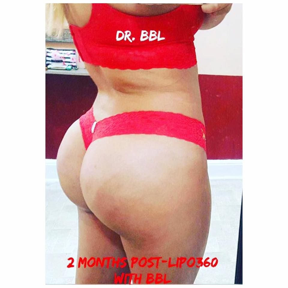 Want a bigger buttocks? Patient is 2 months post lipo 360 with