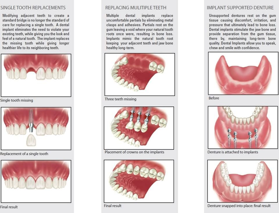 types of different dental implants we perform httpwwwdrdonpreblecommeet dr preble