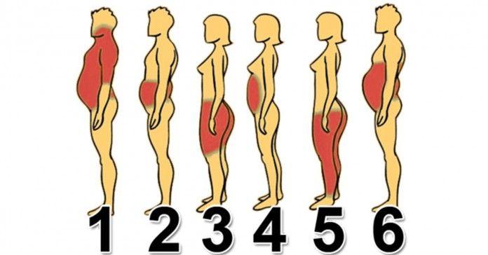 БЛОГ ПОЛЕЗНОСТЕЙ: 6 типов ожирения: Как справиться с каждым из них