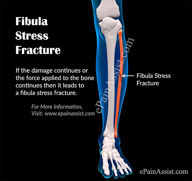 What is Fibula Stress Fracture | Health | Fracture symptoms