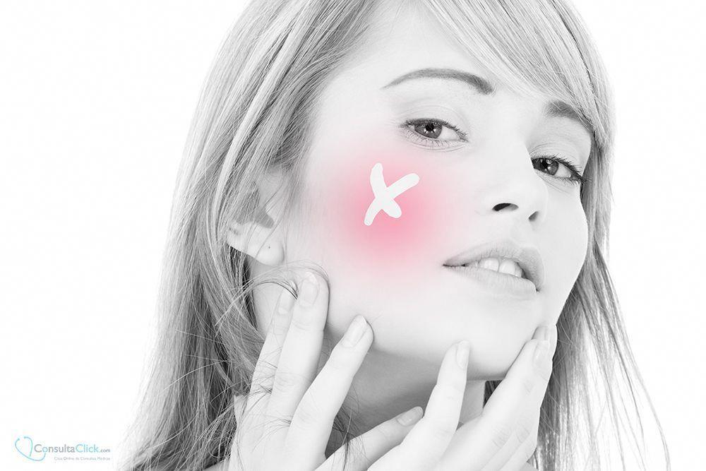 Laser para cicatrices acne