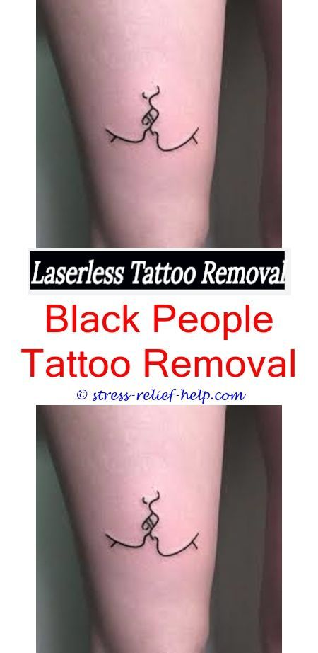 How long does laser tattoo removal session take.Does ...