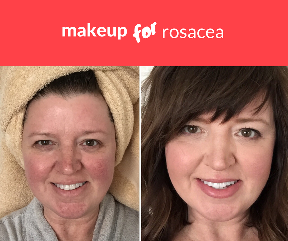 makeup to cover rosacea Rosacea, Rosacea makeup, Natural