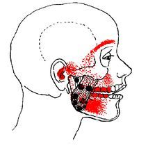 """Masseter-Pain-Composite:  TMJ, tinnitus, """"sinus"""", and toothache. For its size and weight, the masseter is the strongest muscle in the body and its effects are not trivial.  Masseter-Pain-Composite It refers pain to both upper and lower molar teeth, causes TMJ dysfunction, earache and a """"sinus"""" pain over the eyebrow."""