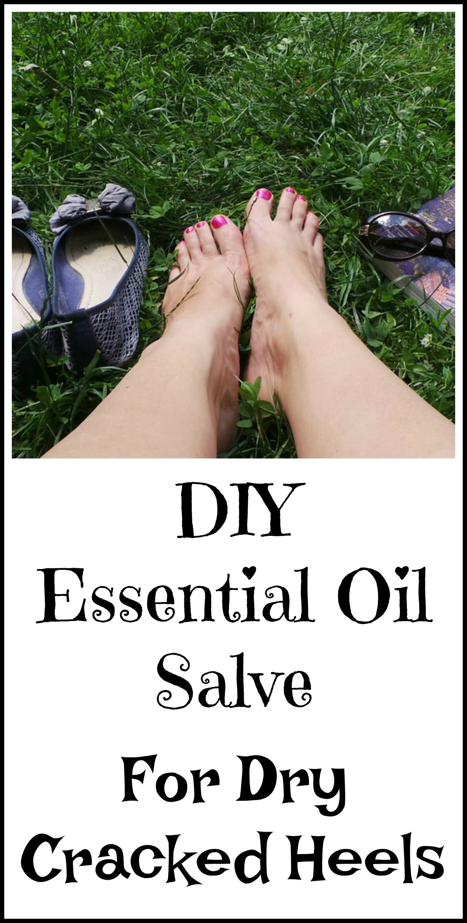 Pin On Cracked Heels Remedies