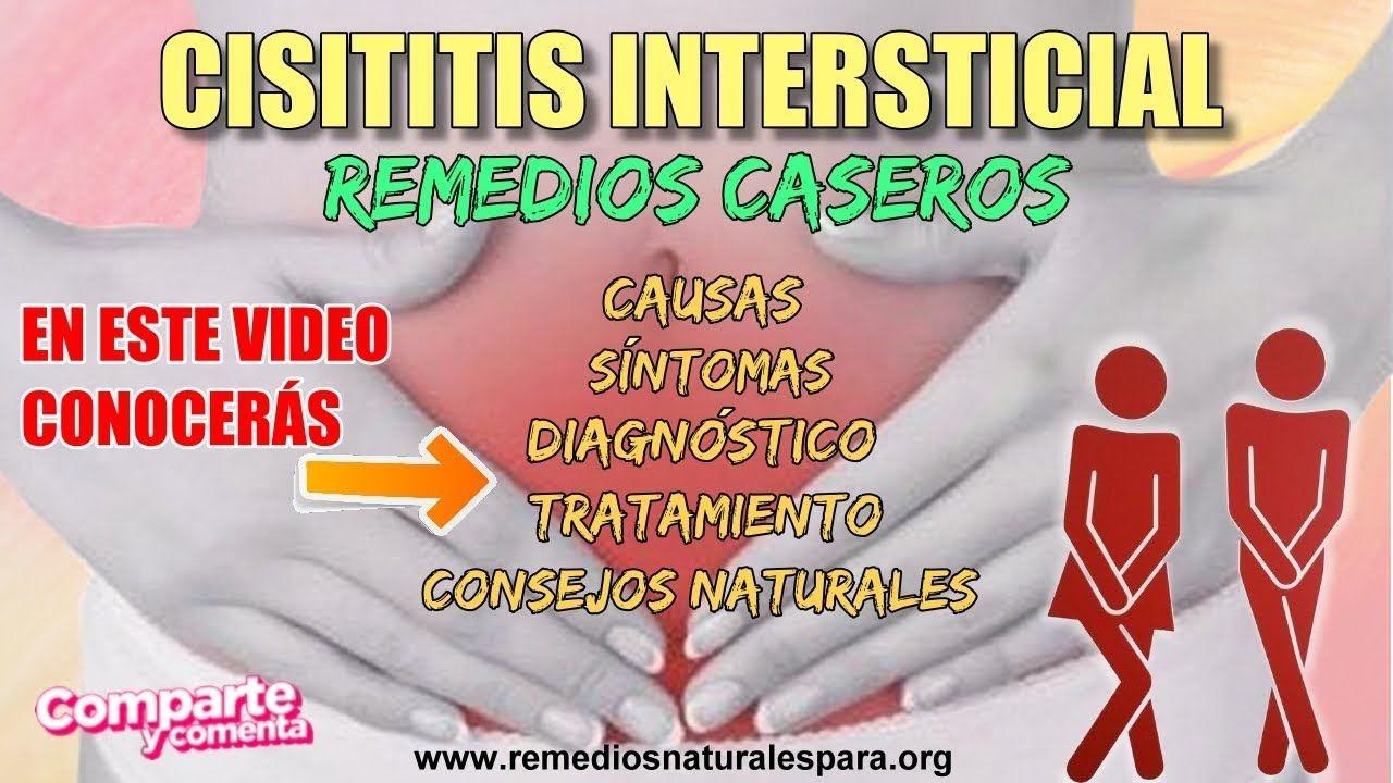 aliviar dolor cistitis intersticial