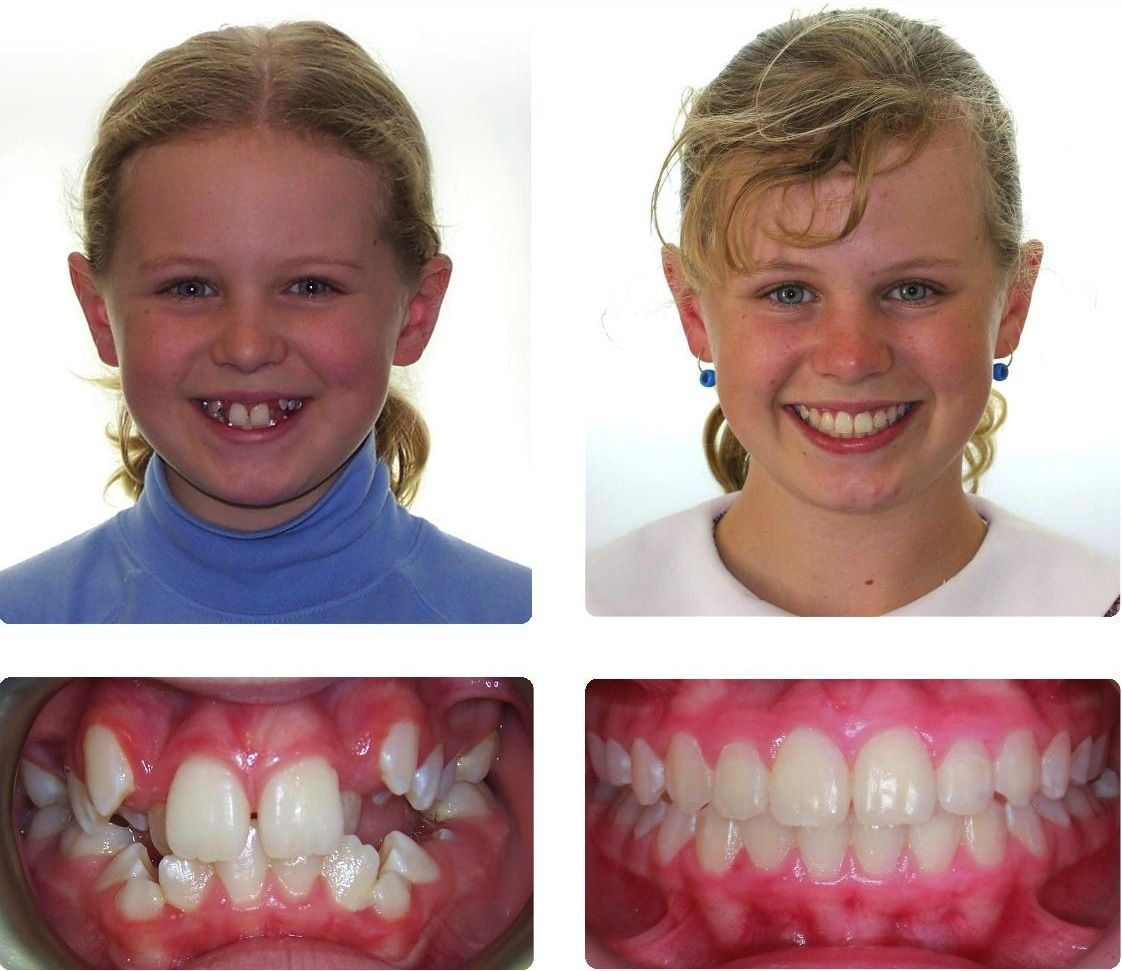 Before And After Braces Pictures