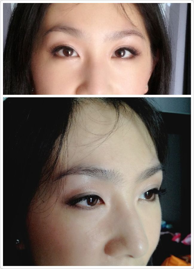 Double Eyelid Surgery Using 3m Tape And Glue To Make Mono Lid Eye