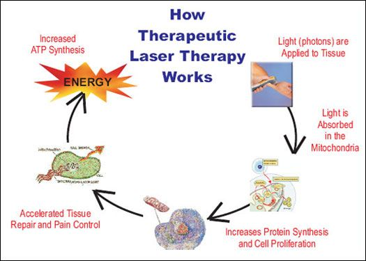 How Laser Therapy Works Laser Therapy Pinterest