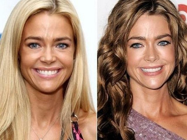 #expensive #celebrity #surgeries #plastic #fitness #modern #most #page #news #theThe Most Expensive...