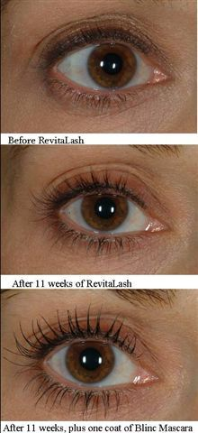 bfb73ced86e Revitalash - A remarkable cosmetic innovation that will improve the  appearance and enhance the beauty of your natural lashes. By simply  applying a small ...