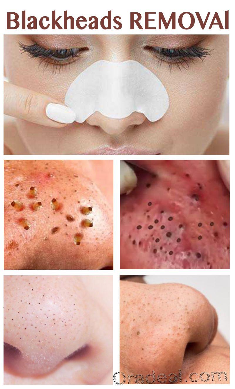 Pin On Beauty Skin