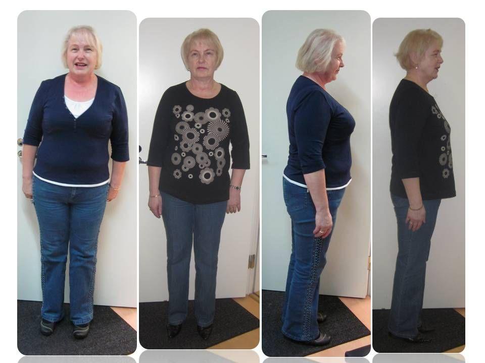 Ennen ja jälkeen kuvia | laihdutusjaterveys-slanka.fi