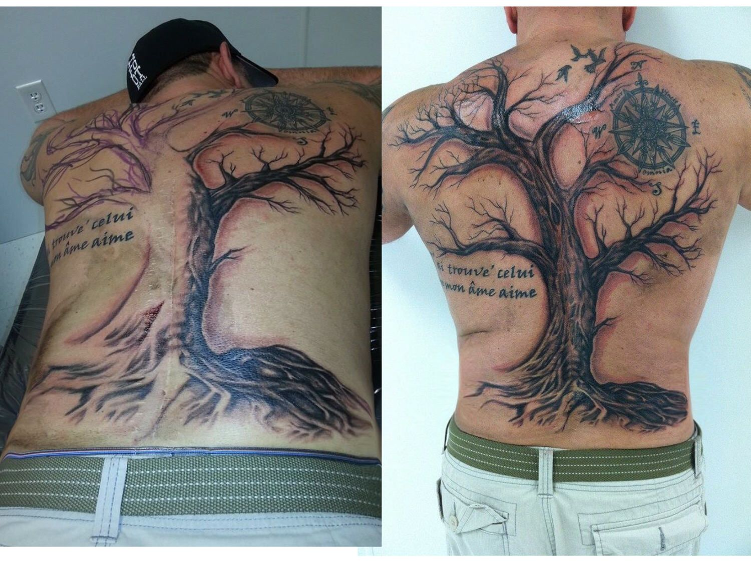 My back before and after scar cover up scar cover up