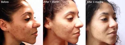 مقشر احماض فواكه افضل نوع وسعره طريقة عمله منزليا مكوناته Skin Therapy Peeling Skin Uneven Skin