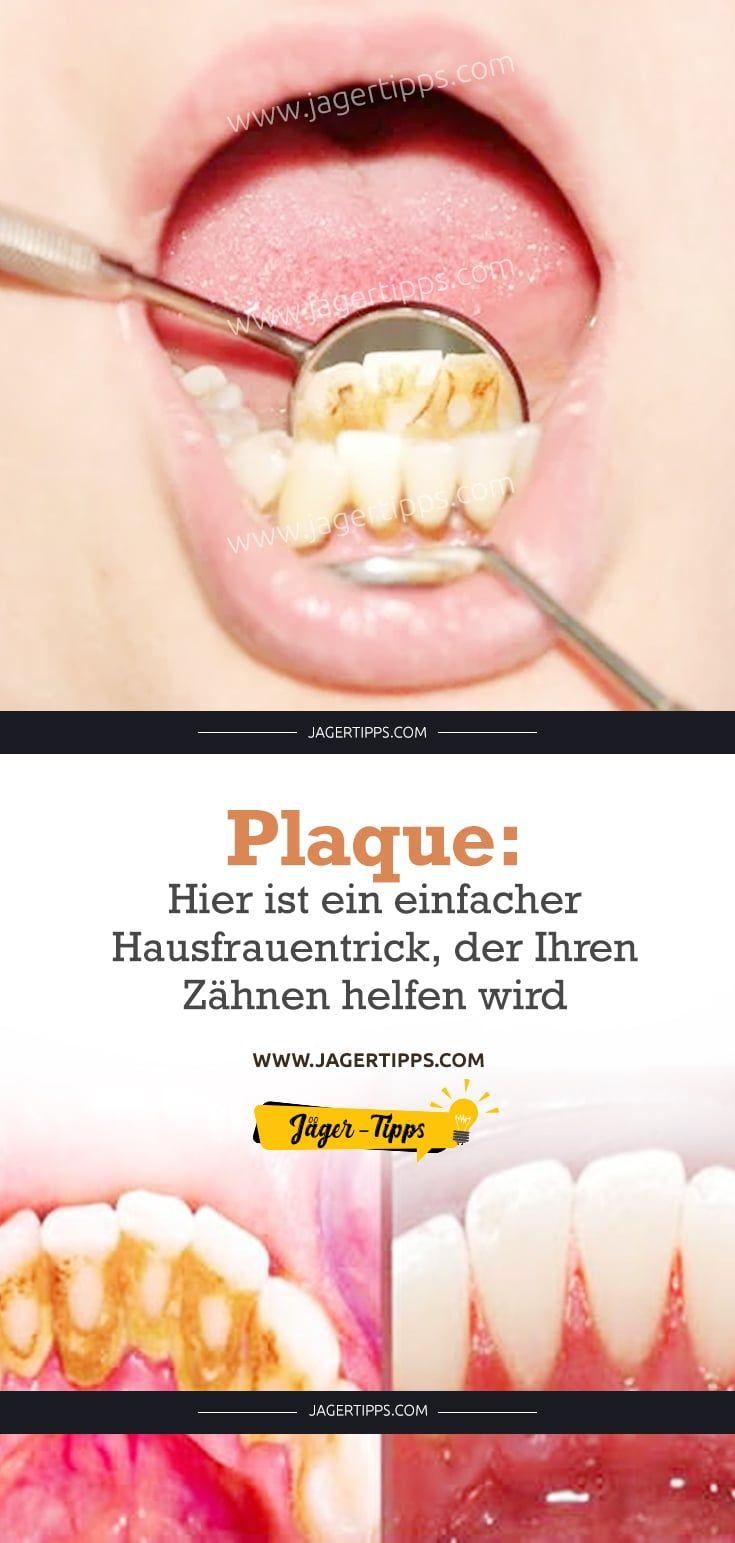 Plaque Hier Ist Ein Einfacher Hausfrauentrick Der Ihren Zahnen Helfen Wird Zahnstein Entfernen Gesundheitspflege Und Gesundheit Und Schonheit