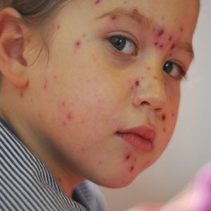 How To Remove Chickenpox Scars From Face Stepbystep Beauty