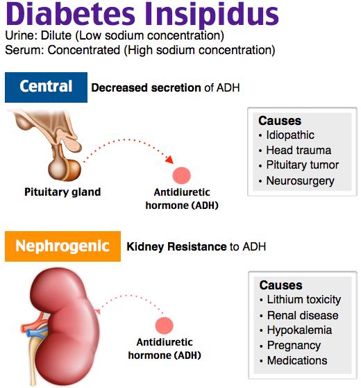 Rosh Review Diabetes Insipidus Endocrine Disorders Nurse Teaching