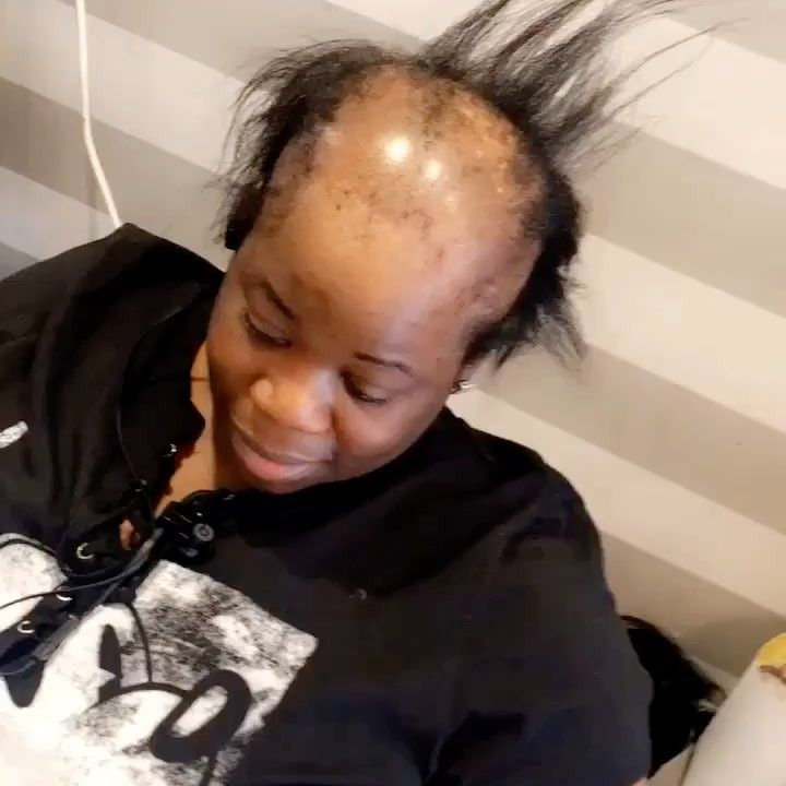 This Woman With Alopecia Just Got the Most AMAZING Hair ...