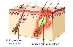 Bienestar y Salud Ecológicos - 694 475 990 bysecologicos@gmail.com: Foliculitis en axilas