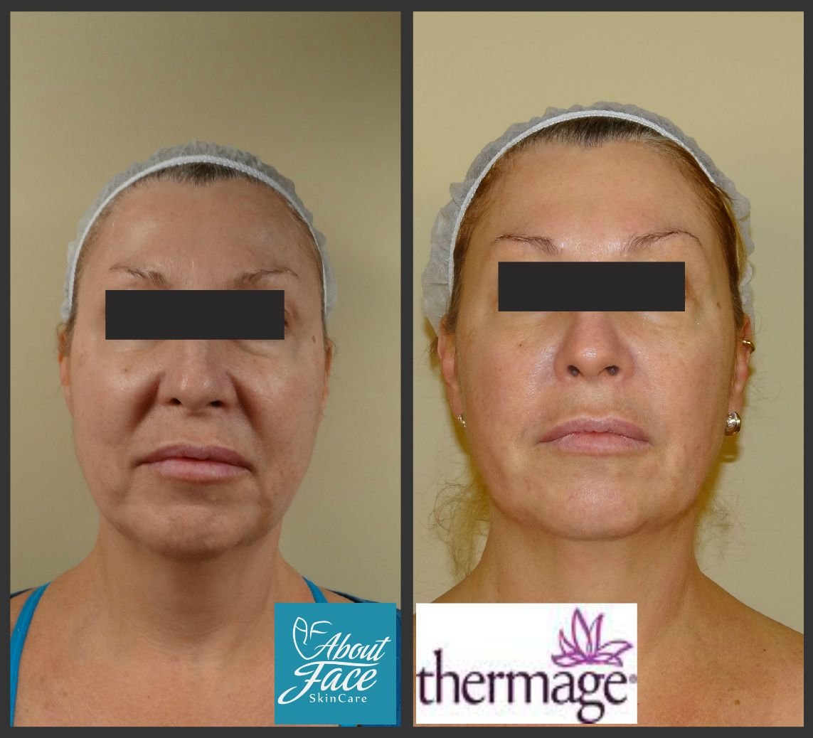 Thermage skin-tightening before and after pictures