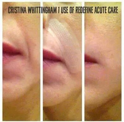 Acute Care Delivers Amazing Results It Smooths Expression Lines With Proprietary Liquid Cone Technol Rodan Fields Skin Care Botox Alternative Rodan And Fields