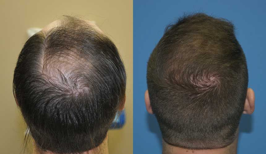 A Common Problem That Is Threatening The Modern Society Is Hair Loss