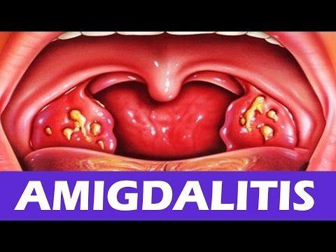 Como quitar la amigdalitis rapidamente