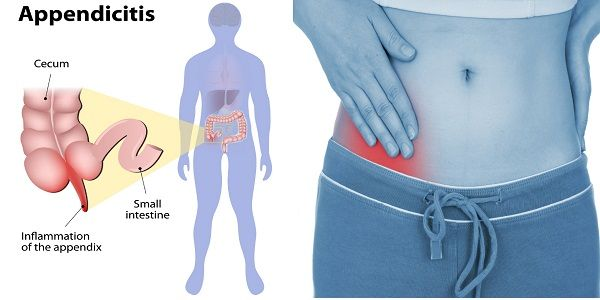 7 Home Remedies To Help You Survive Appendicitis