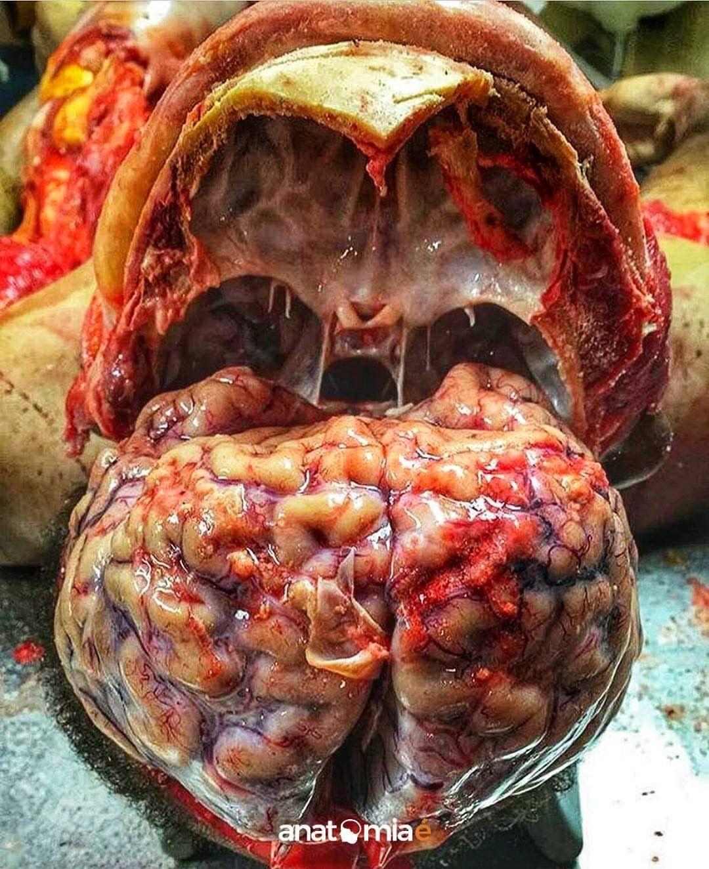 Pin de Natsuko Suzuki en human | Pinterest | Medicina, Anatomía y ...