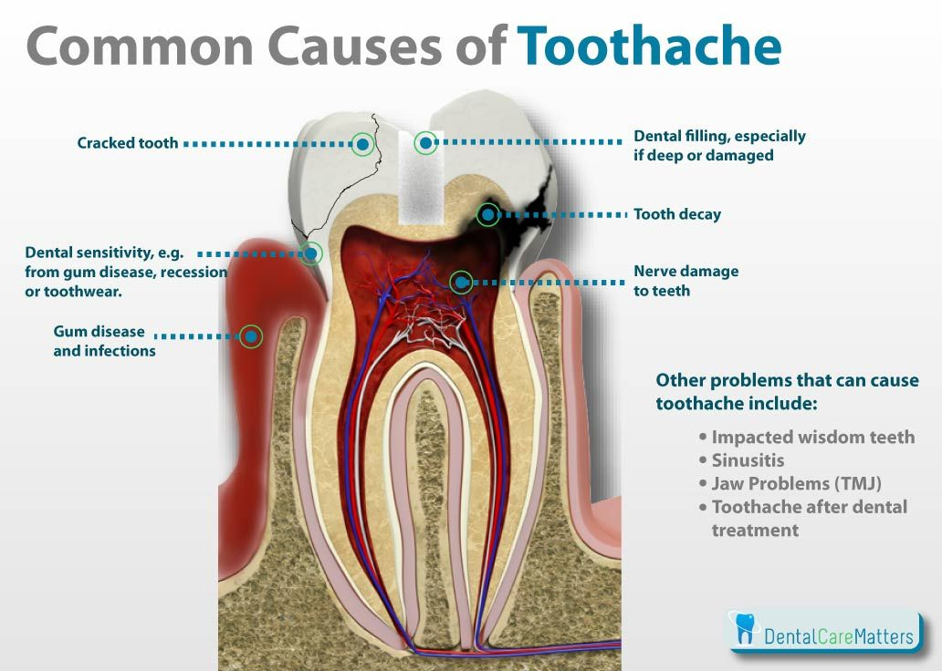 5d717a28ab8623b3aa0f6a4f9c504951 - How To Get Rid Of Tooth Pain From Sinus Pressure