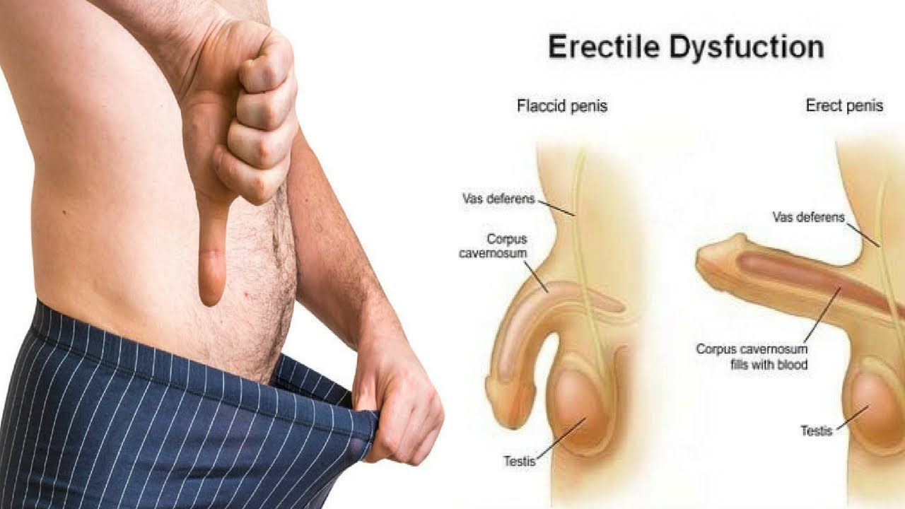 4 SYMPTOMS OF ERECTILE DYSFUNCTION   The MSIAT   Pinterest