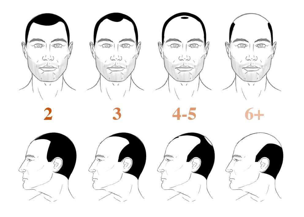 How Bald Are You Norwood Hamilton Scale Norwood Scale Norwood Hair Loss