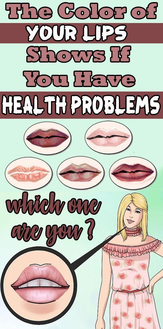 The Color Of Your Lips Shows If You Have Health Problems What Color Are Your Lips Probleme De Sante Produits De Sante Sante