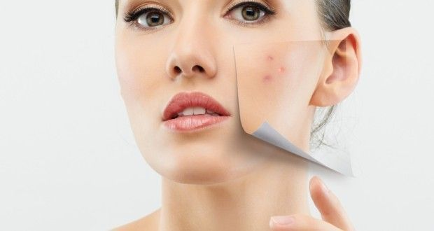 How To Get Rid Of Acne Fast And Overnight?
