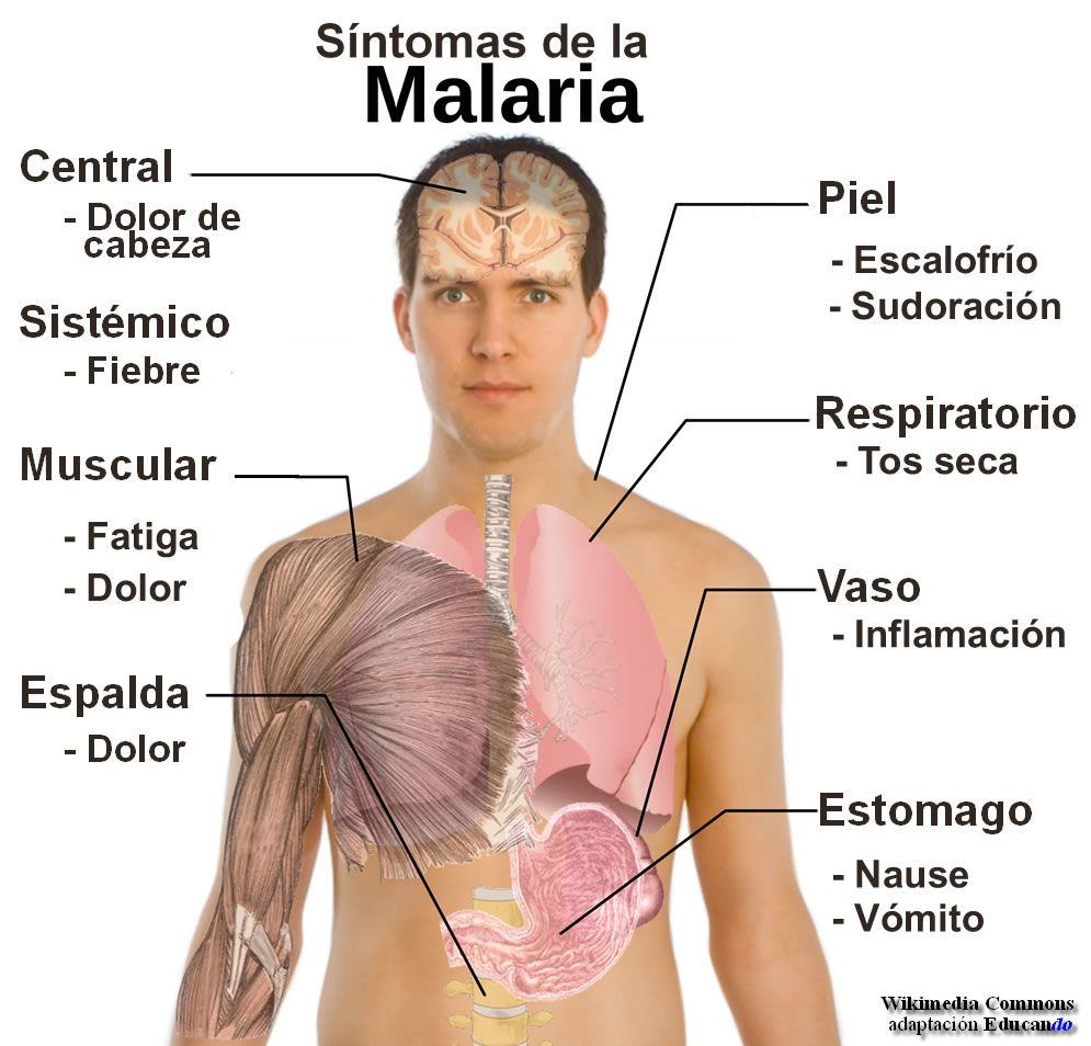 medium resolution of paludismo o malaria buscar con google causes of malaria malaria symptoms malaria parasite