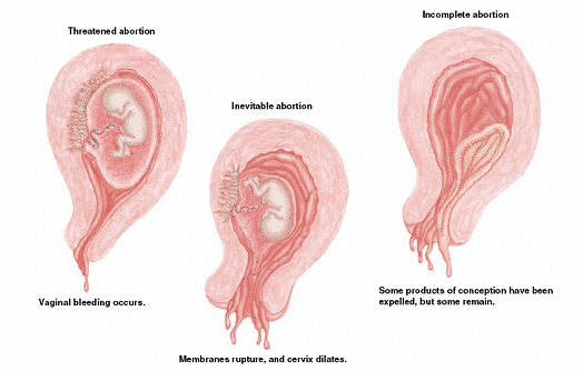 Threatened abortion?