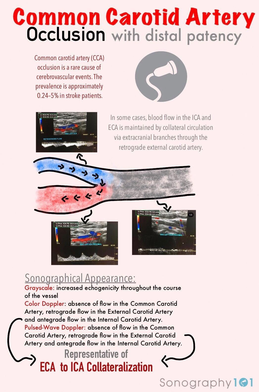 Common Carotid Artery Occlusion Infographic in 2020