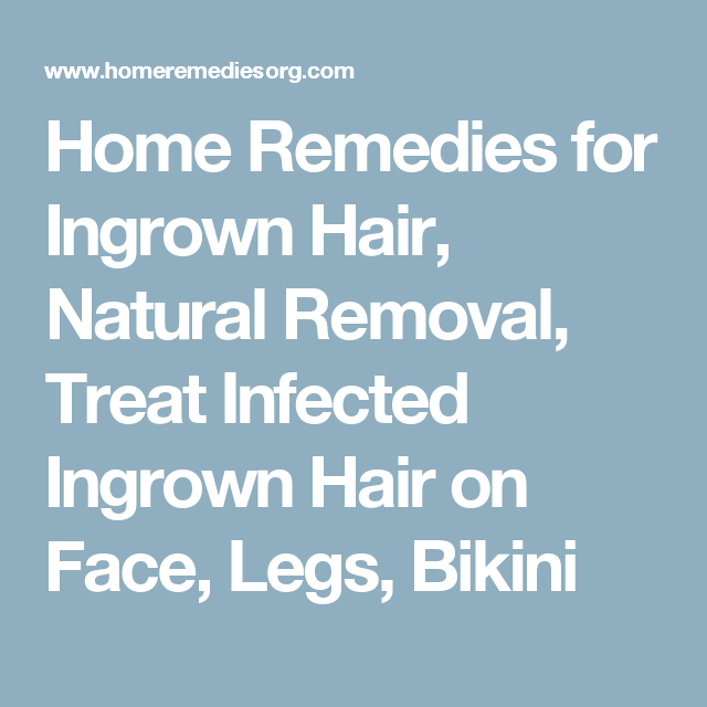 Home Remedies For Ingrown Hair, Natural Removal, Treat