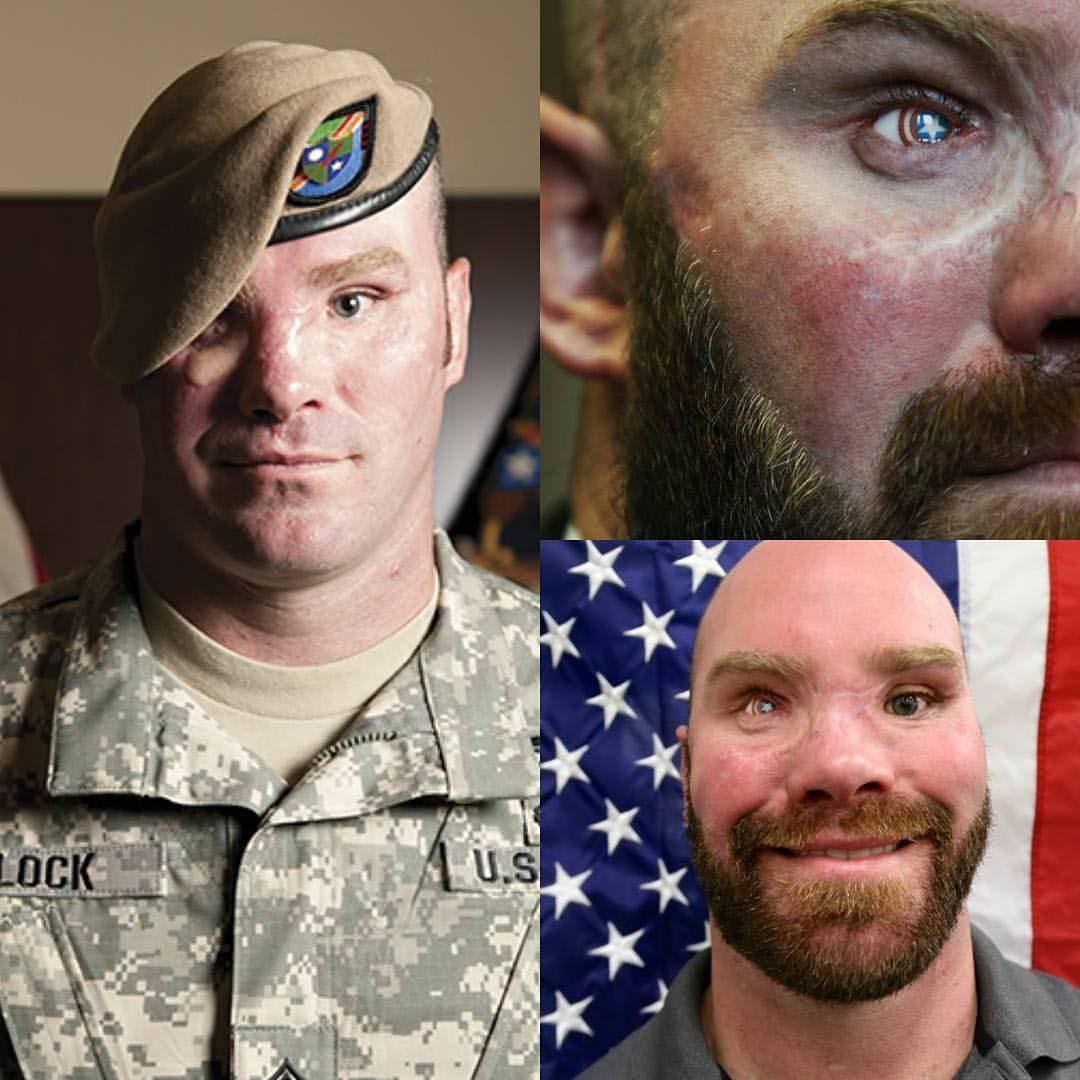 Sergeant Block Has A Glass Eye With Captain America S Shield Us Army Rangers Army Sergeant 75th Ranger Regiment