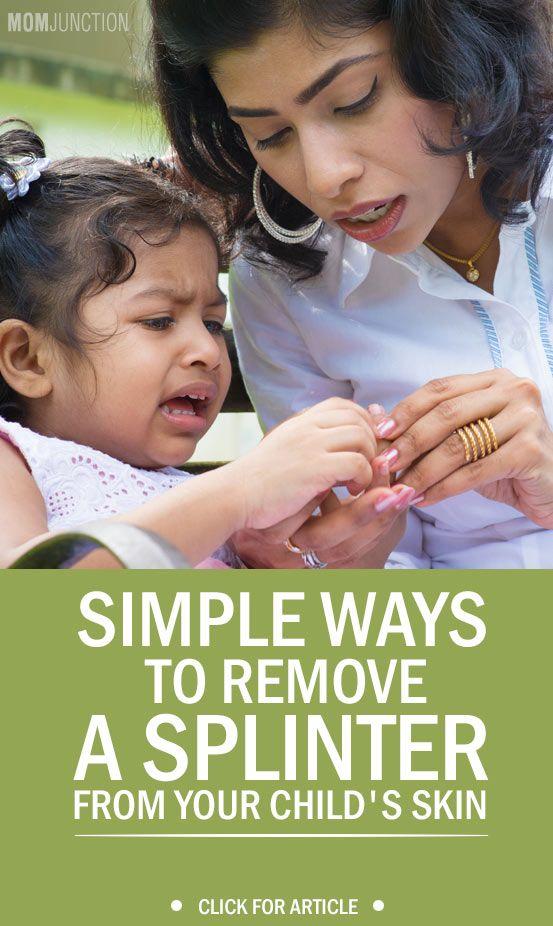 5 Best Ways To Remove Splinter From A Child S Skin Doterra Salud Piel
