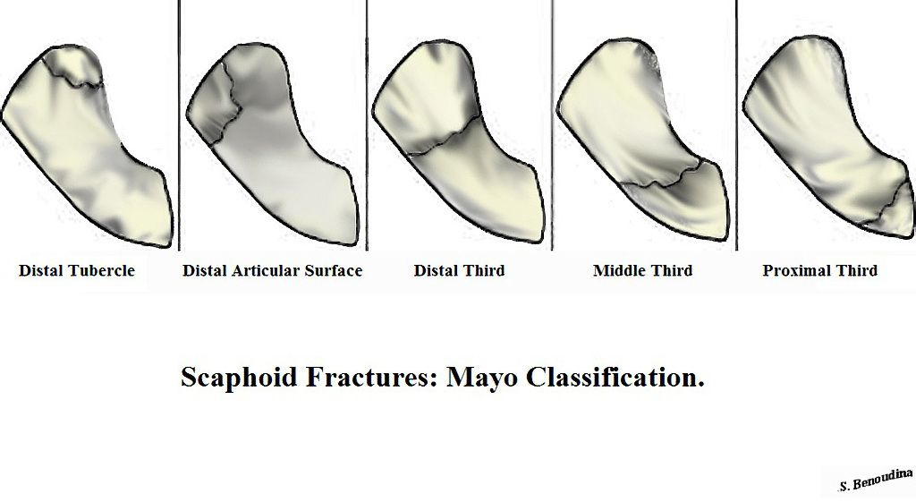 Mayo classification of scaphoid fractures divides them into three ...