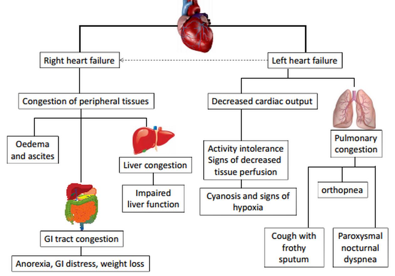Left Ventricular Failure Google Search Left Sided Heart Failure Heart Failure Right Sided Heart Failure