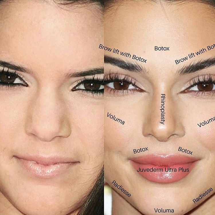 What Did Kendall Have Done Here Are Some Possibilities Agree These Are T Kendall Jenner Plastic Surgery Cosmetic Dermatology Face Plastic Surgery