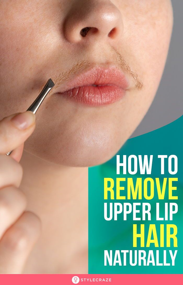 How To Remove Upper Lip Hair Naturally At Home - 11 Ways ...