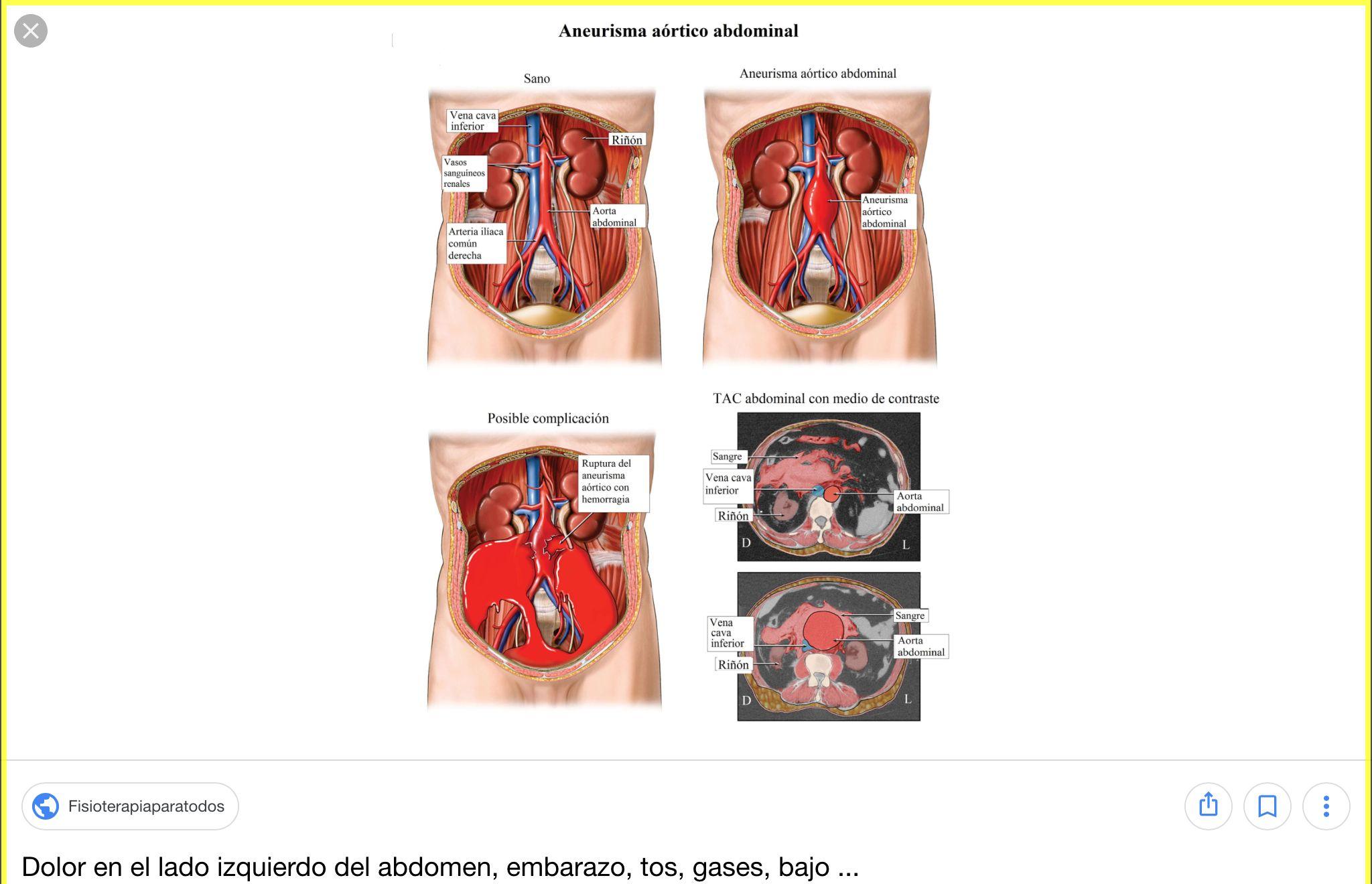 abdomen anatomia - Buscar con Google | Anatomia | Pinterest ...