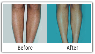 Laser Hair Removal Clinic In Delhi Best Laser Hair Removal In