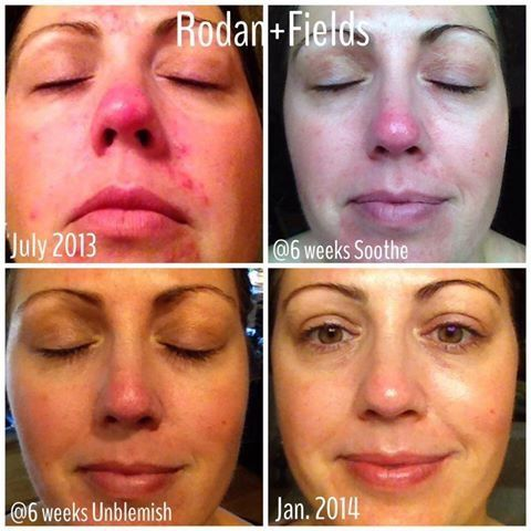 Do you have multiple skin concerns?  First, treat the irritated, red skin, then your next concern.  Get the skin you've longed for.