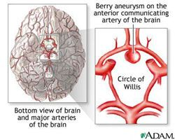 brain aneurysm - neurosurgery at ucla | brain aneurysms, Human Body
