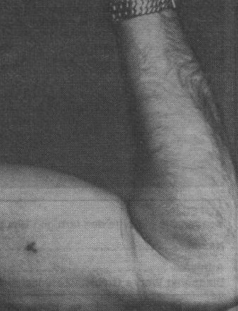 blood type a tattoo on the arm of an ss officer wwii history